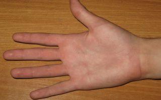 Что означает родинка на правой или левой руке