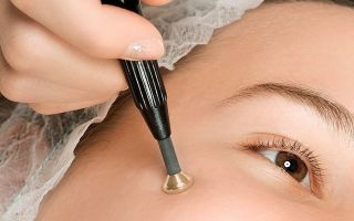 Что лучше использовать: удаление бородавок лазером или азотом?
