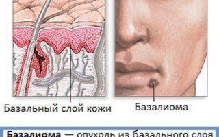 Заболевание базалиома: что это такое?