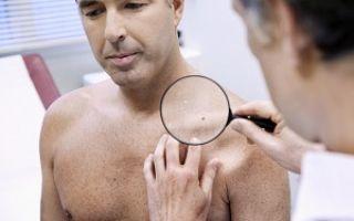 Как выявить и лечить ВПЧ у мужчин