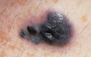 Как появляется меланома волосистой части головы?