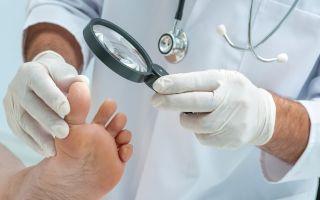 Несколько способов как избежать мозолей на ногах