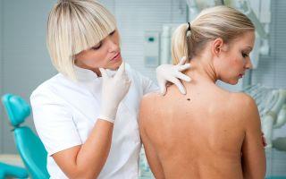 Какие бывают папилломы на лице? Причины их возникновения и методы лечения