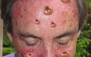 Меланома: почему возникает и чем опасна?