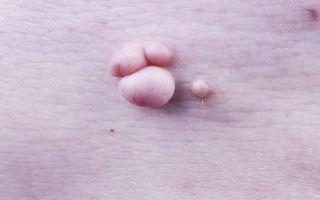 Лечение чистотелом от вируса папилломы