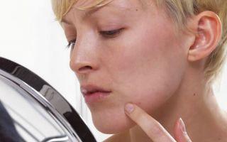 Стоит ли бить тревогу: чем опасны бородавки?