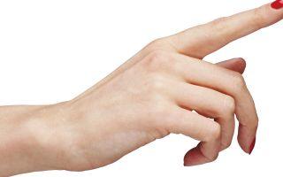 Диагноз атерома на руке