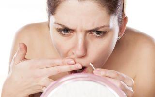 Причины появления и лечение вульгарных бородавок