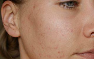 Контагиозные моллюски на коже: причины и симптомы