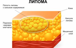 Жировики атерома и липома: отличия