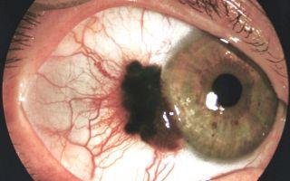 Как распознать и вылечить меланому глаза?