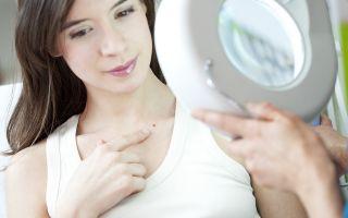 Причины появления симптомы и лечение нитевидных папиллом