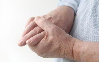 Бородавки на руках: основные причины и лечение