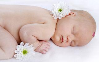 Появилось родимое пятно у новорожденного: причины?