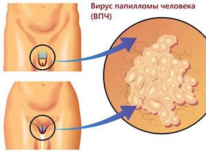 Кондиломы на половых органах
