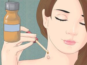 Лечение папиллом яблочным уксусом