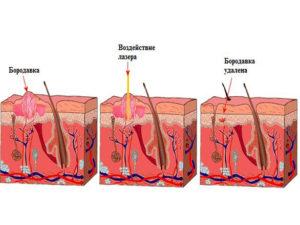 Схема удаления бородавки лазером