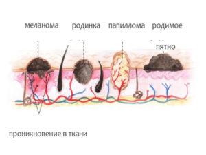 Виды образований на коже