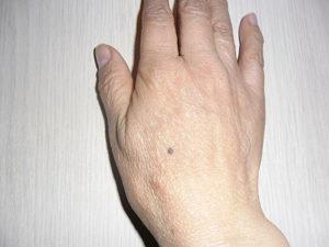 Значение родинки на руке