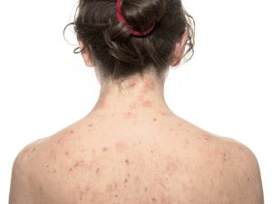 Аллергия - следствие применения papillock