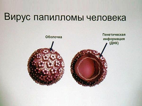 вирус папилломы человека вызывающий остроконечные кондиломы
