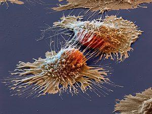 Риск проявления раковых клеток на родинках с волосами