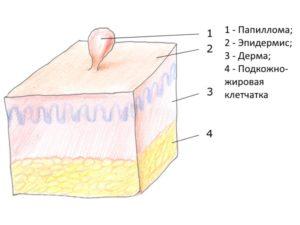Схема паппиломы