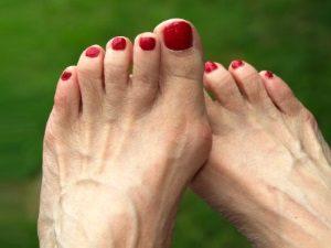 Проблема бородавки на пальце ноги