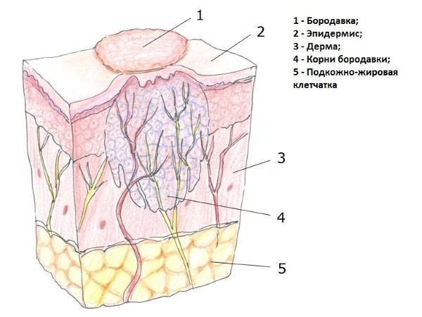 Бородавки удаление лазером лечение