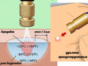 Принцип удаления бородавки жидким азотом