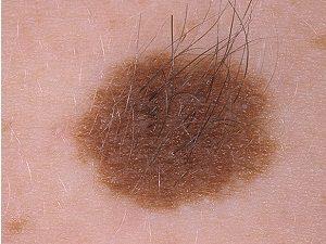 Появление волос на родинках