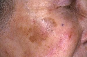 Симптоматика меланомы лентиго