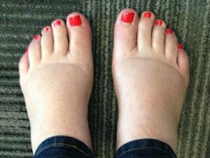 Проблема опухших ног