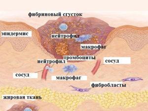 Схема келоидного рубца