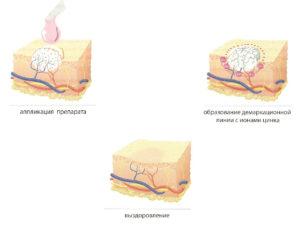 Схема лечения бородавки