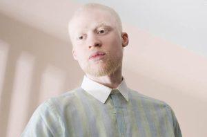 альбиносы в группе риска