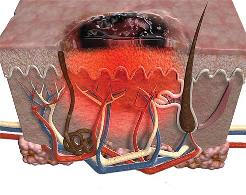 меланома кожи лечение народными средствами