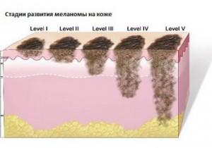 стадии развития меланомы