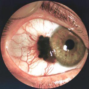 симптомы меланомы глаза
