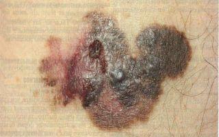 Каков прогноз жизни при меланоме кожи