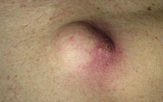 Чем опасна для человека нагноившаяся атерома кожи