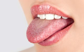 Причины и лечение бородавок на языке
