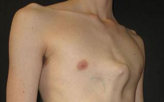 Что такое деформации грудной стенки?