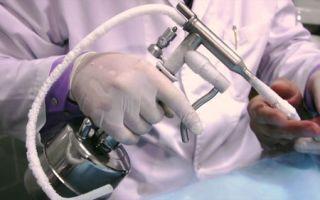 Процедура криодеструкции базалиомы
