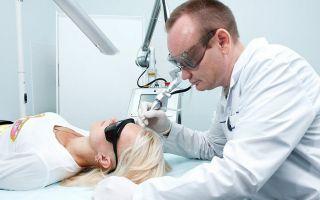 Метод удаления бородавок хирургическим путем