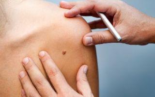 Как быстро развивается заболевание меланома