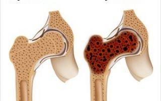 Симптоматика меланомы костей: диагностика и лечение