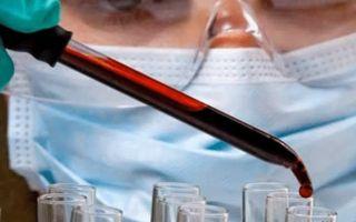 Квалифицированная диагностика меланомы
