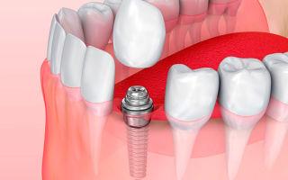 Замена зубных протезов на зубные имплантаты
