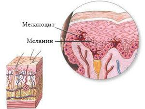 Перерождение меланоцита в меланин
